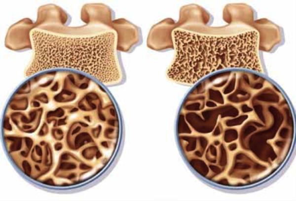 Денситометрия позволяет выявить даже незначительные изменения в костной ткани позвонков