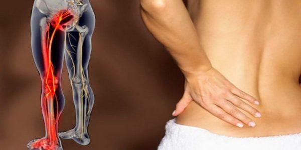 Если защемление произошло в поясничном отделе, боль распространяется на ягодицу, бедро и ногу