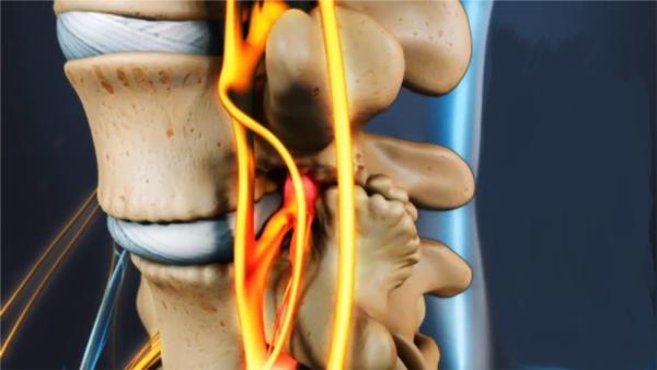 При сдавливании нерв воспаляется, в месте защемления возникает отек и боль