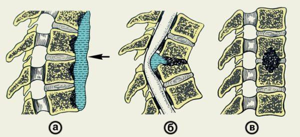 Формы остеомиелита