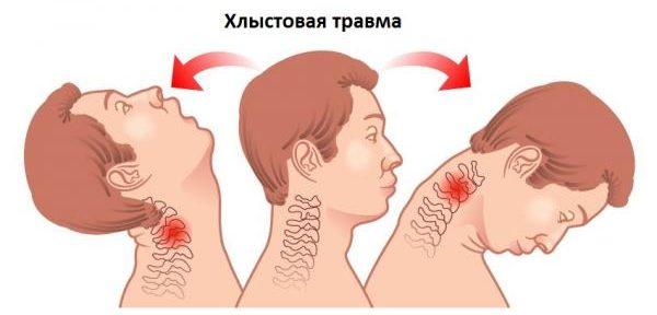 Остеофиты могут быть следствием травмы шейных позвонков