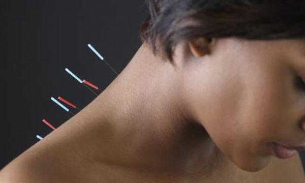 Иглоукалывание часто включают в комплексную терапию при остеофитах позвоночника