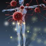 Иммунная дисфункция