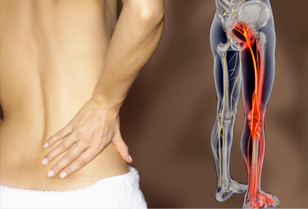 Почему болит седалищный нерв: симптомы и лечение