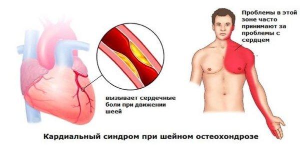 Кардиальный синдром при шейном остеохондрозе