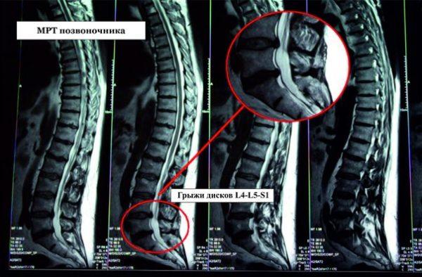 Картина МРТ при грыже