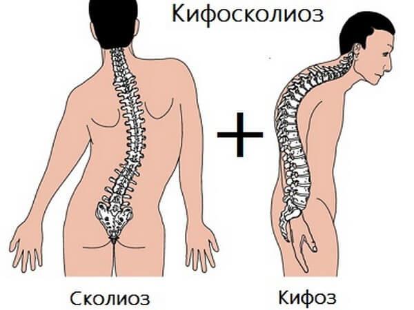 Кифосколиоз грудного отдела позвоночника