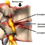 Остеофитная грыжа шейного отдела
