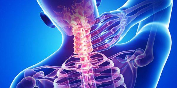 Лечение нестабильности шейного отдела позвоночника