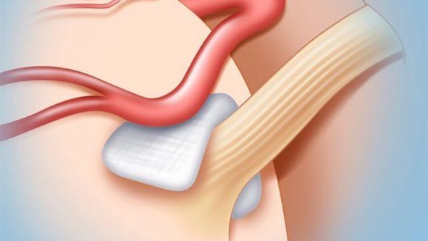 Методика декомпрессии заключается в размещении между нервом и артерией специальной прокладки