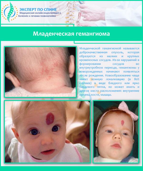 Младенческая гемангиома