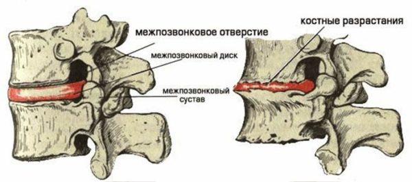 На картинке слева изображен здоровый позвоночный канал, а справа при наличии болезни – спондилеза