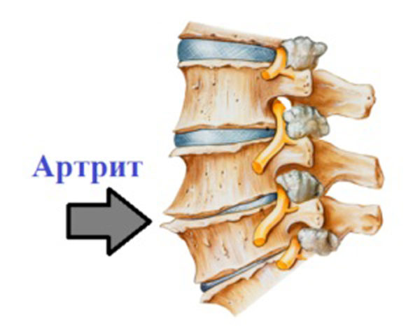 Не назначается рентгенография и пациентам с артритом позвоночника