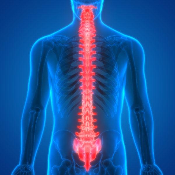 Нередко прогрессирование болезни приводит к поражению спинного мозга, что влечет за собой тяжелые последствия, вплоть до полного паралича