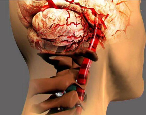 Одной из главных причин развития вегето-сосудистой дистонии (ВСД или полиэтиологический синдром) является остеохондроз шейного отдела позвоночника