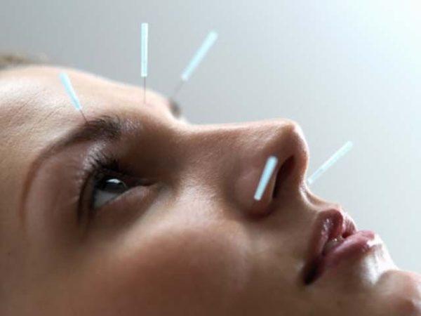Определенный эффект дает и лечение иглоукалыванием