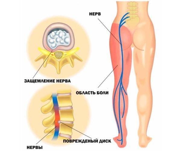 Основные причины защемления седалищного нерва