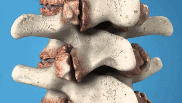 Специалисты выделяют несколько видов остеофитов