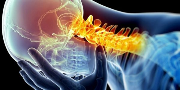 Остеофиты шейного отдела позвоночника: лечение