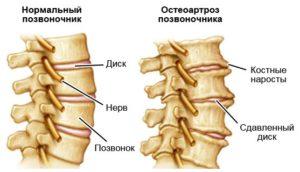 Остеохондроз и остеоартроз