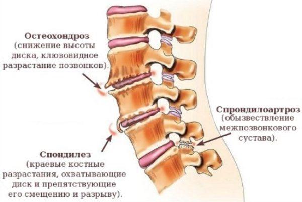 Остеохондроз, спондилез и спондилоартроз