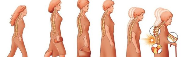 Остеопороз бывает нескольких типов