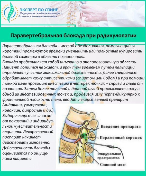 Паравертебральная блокада при радикулопатии