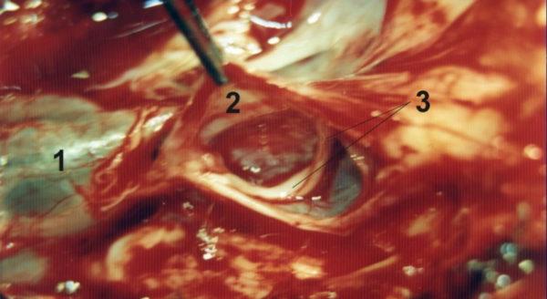 Периневральная киста крестцового канала