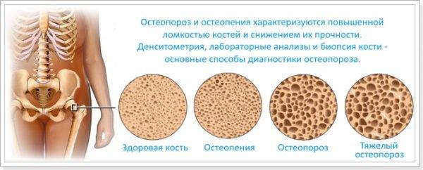 Плотность костной ткани при разных степенях остеопороза