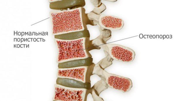 Показанием к назначению денситометрии является остеопороз и родственные ему патологии