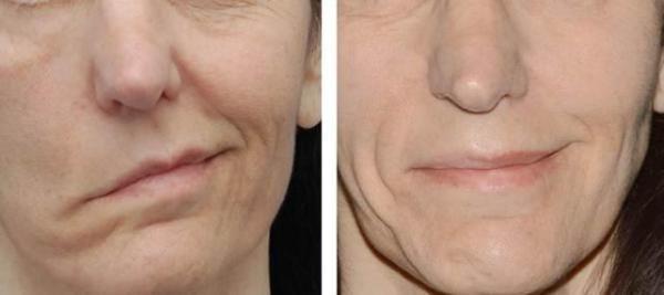 Опущение одного уголка рта - один из характерных симптомов невралгии