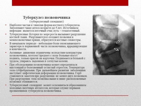 Позвоночный туберкулез