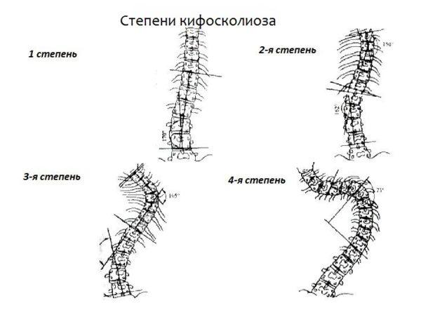 Степени искривления позвоночного столба при кифосколиозе