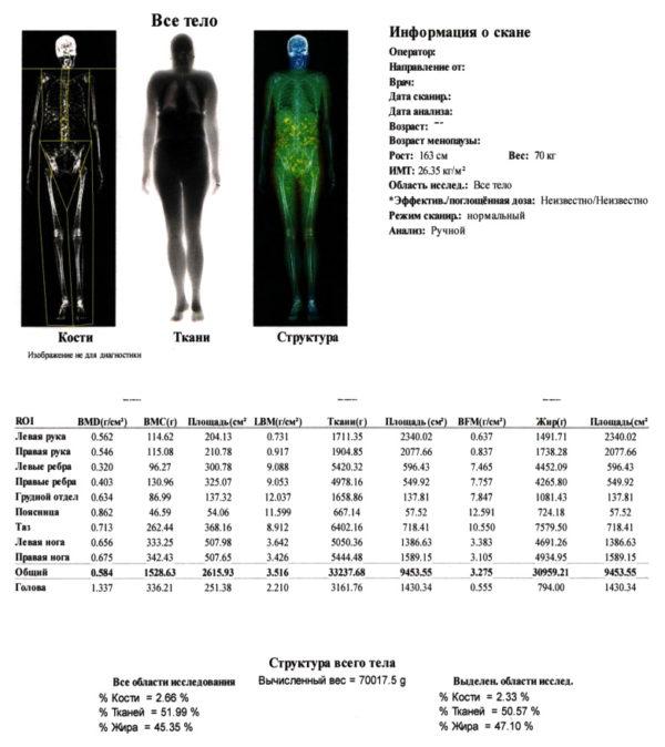 При необходимости пациенту назначается денситометрия всего тела