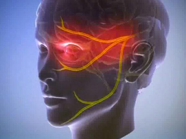 При нетипичной невралгии человек постоянно ощущает боль с пораженной стороны