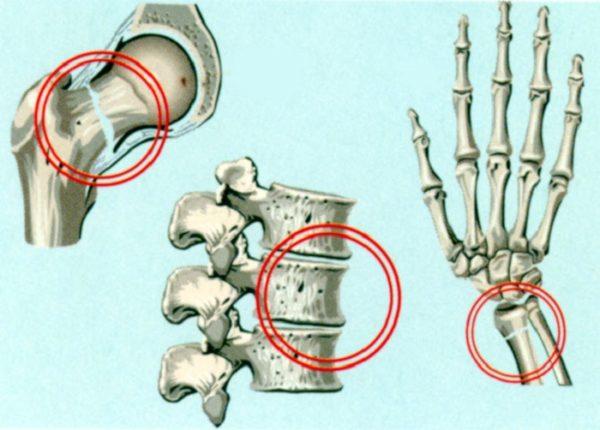 При остеопорозе риск переломов значительно возрастает