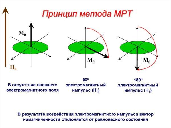 Принцип метода МРТ