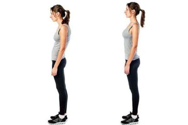 Приведенные ниже упражнения позволят предотвратить появление сутулости