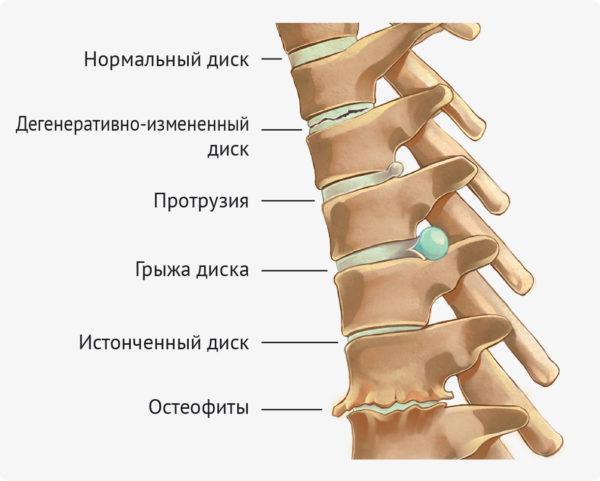 Прогрессирующий кифосколиоз приводит к развитию осложнений - остеохондрозу, грыжам диска, протрузиям