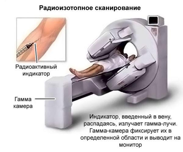 Процедура проведения радиоизотопного сканирования