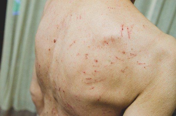 Разогревающие мази не наносят на кожу при имеющихся повреждениях (царапинах, сыпи, экземах)