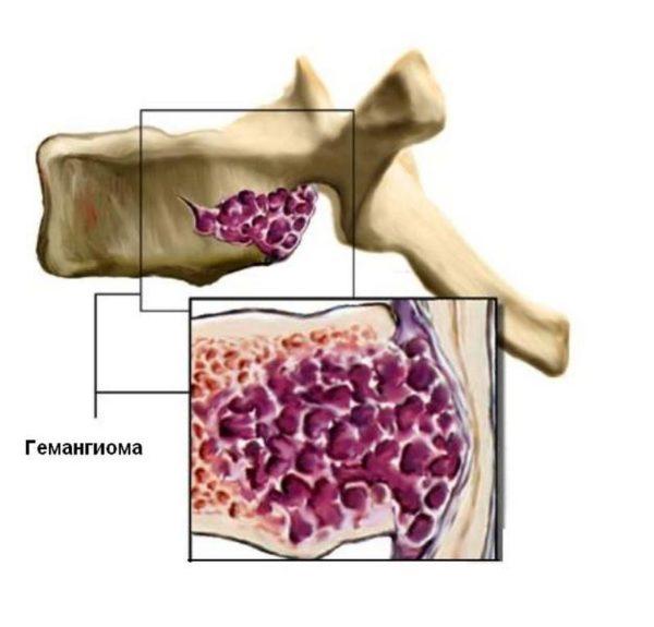 Разрушение позвонка, которое в дальнейшем может привести к компрессионному перелому