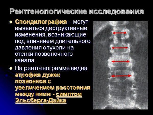 Рентгенологические исследования