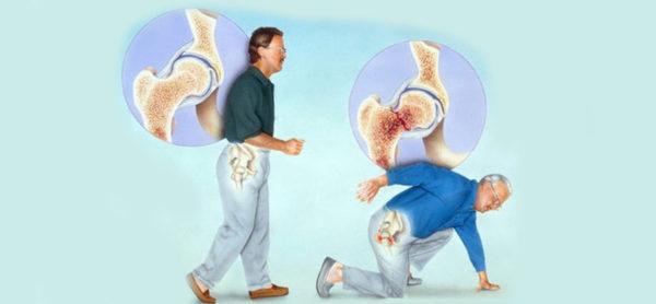 Наличие переломов у людей старше сорока тоже требует регулярного прохождения обследования