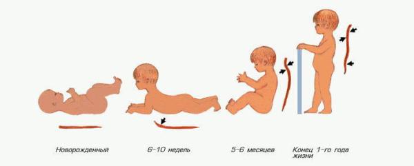 До полугода определить наличие патологии позвоночного столба очень сложно, ведь пока малыш находится в лежачем положении, деформации незаметны