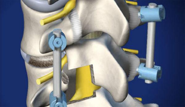 Метод фораминотомии позволяет увеличить расстояние между позвонками и устранить компрессию нервных волокон