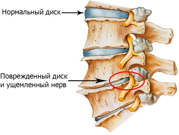 Самой распространенной причиной корешкового синдрома является запущенный остеохондроз