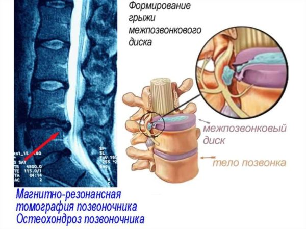 Снимок остеохондроза межпозвоночных дисков