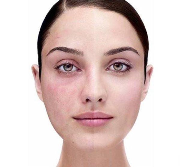 Со стороны поражения нерва часто появляется едва заметная сыпь