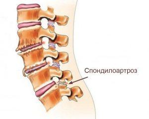 Деформирующий спондилоартроз шейного отдела позвоночника лечение